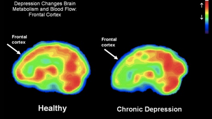 blood flow brain
